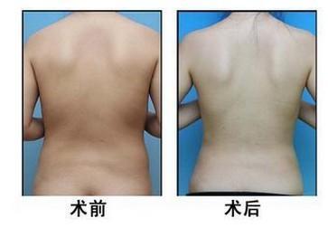 背部吸脂减肥的步骤是怎么样的呢?